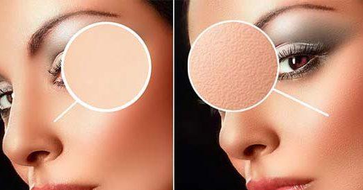 Photoshop-Skin-Texture
